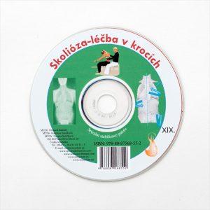 CD - Skolióza 2 - léčba v krocích
